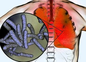 Legionárius betegség